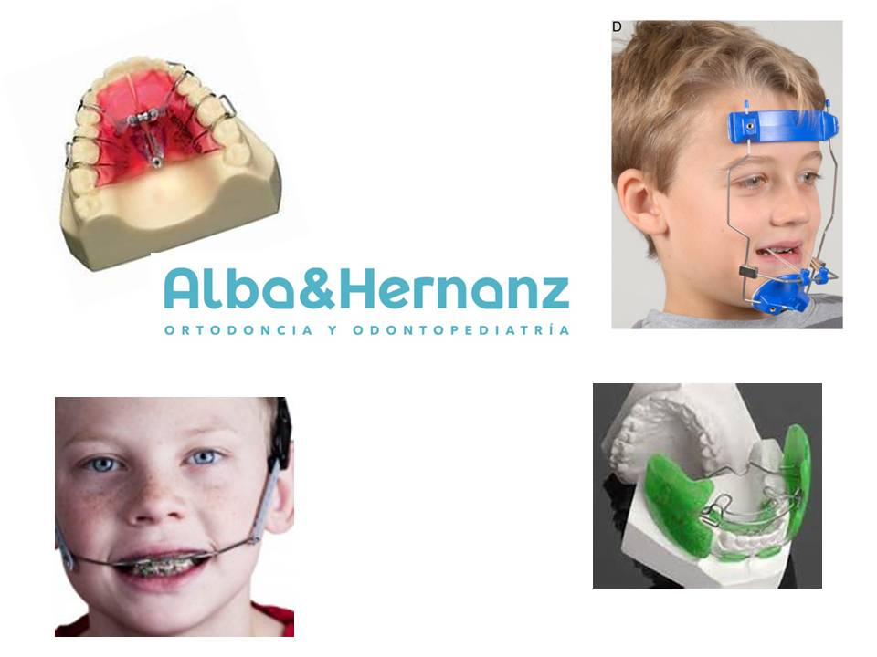Evolucion de la Ortodoncia, Aparatos Ortopédicos, Alba & Hernanz