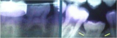 dientes temporales anquilosados, problemas en la erupción dentaria